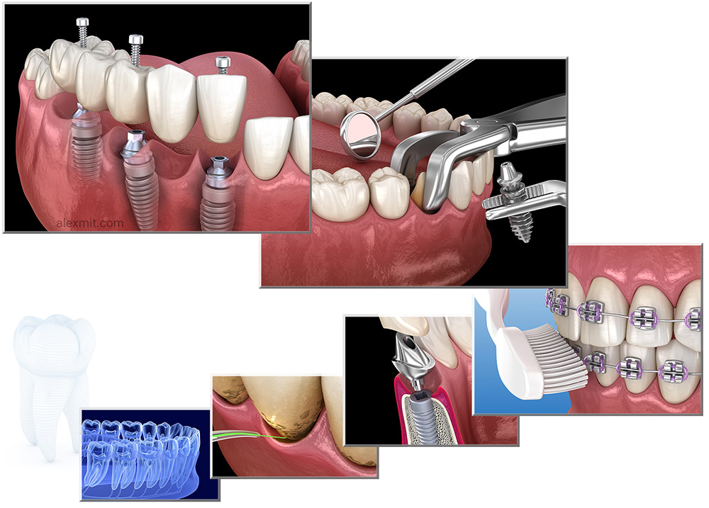 3D Dental illustrations